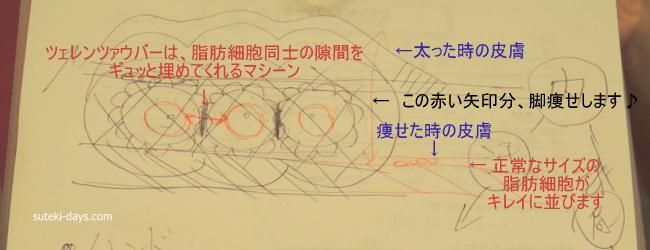 リフィートツェレンツァウバーの説明図