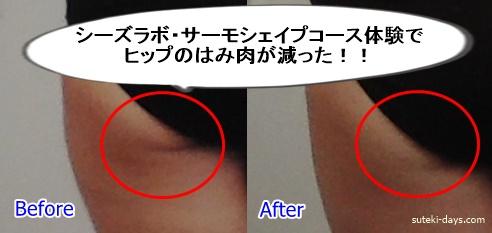 シーズラボ・サーモシェイプ体験Before&After